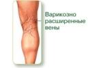 Натуральная терапия для ног
