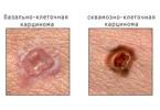 Рак кожи – карцинома