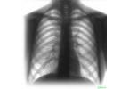 Туберкулез — инфекционная болезнь